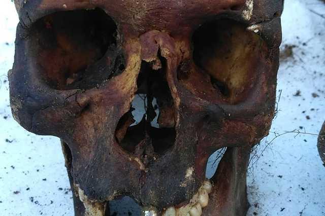 «В черепах следы от пуль». В Благовещенске мужчина нашел братскую могилу на дачном участке